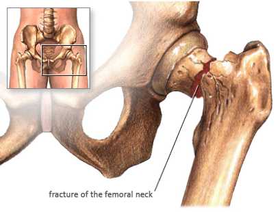 hip_fracture